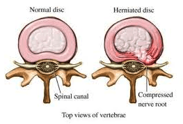 normal_vs_herniated_disc