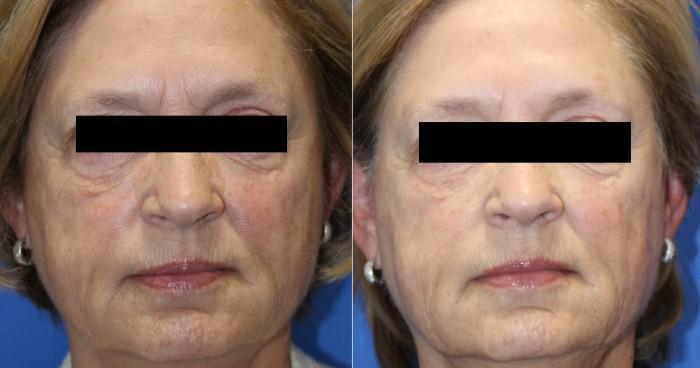 Secret RF Microneedling Before and After