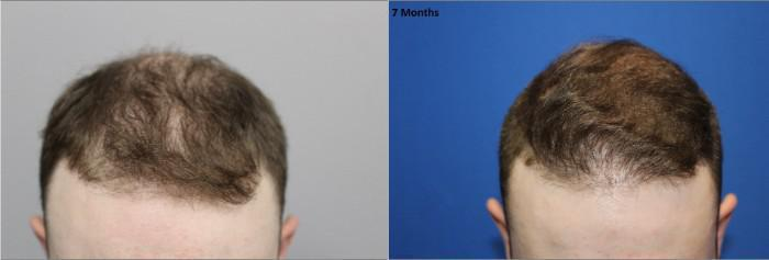 Smart Graft Hair Transplant Before and After