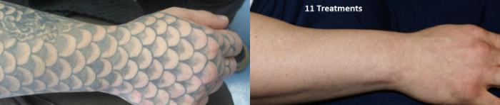 Tattoo Removal 4