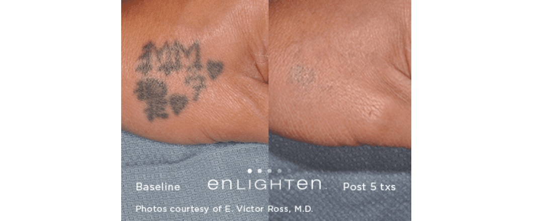 Tattoo Removal - Cedar Rapids, IA: Cosmetic Solutions Laser and Skin ...