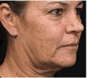 Radio-frequency Skin Tightening 1