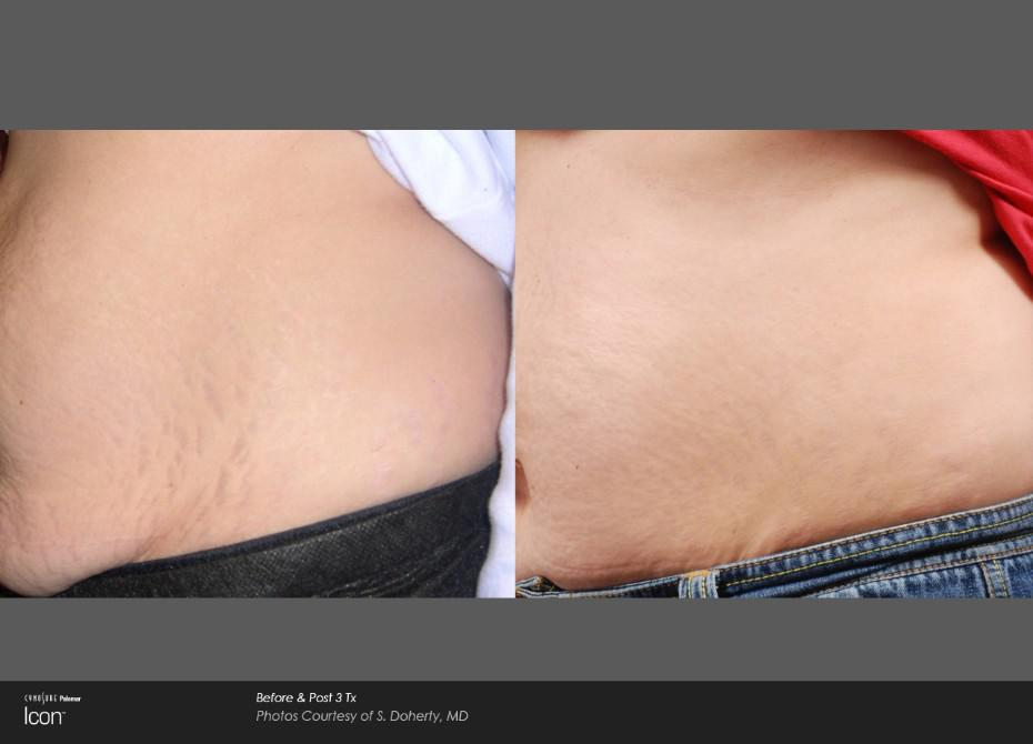 B&A Stretch Mark