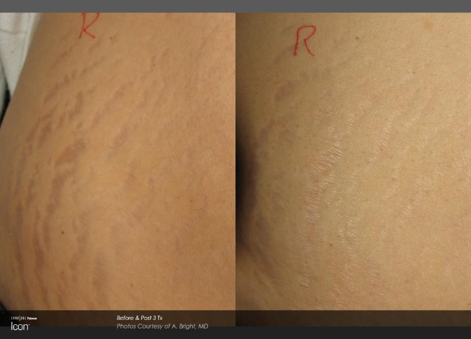 B&A Stretch Mark 2