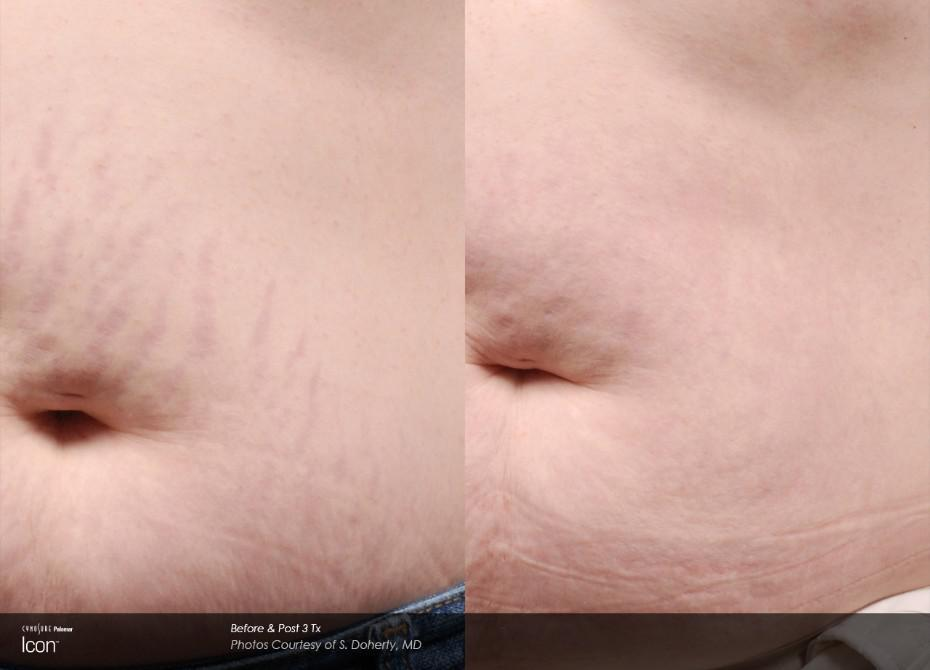 B&A Stretch Mark 4