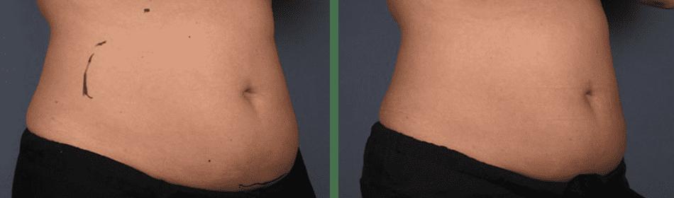 liposonix treaments largo fl dr k s med spa