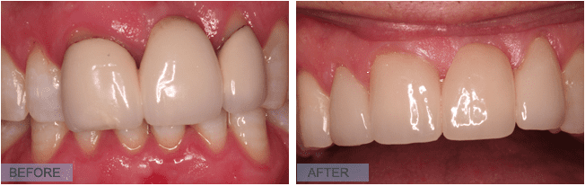Before and After teeth image