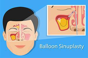 Sinuplasty