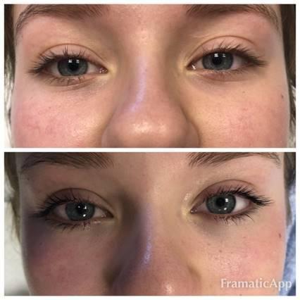 Lash Lift Specialist - Casper, WY: Stirling Skin Care Clinic