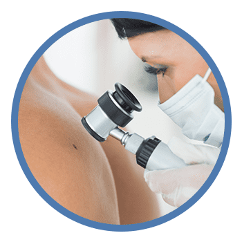 doctor examining mole on patients back
