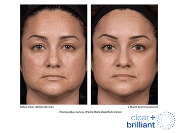 Clear+Brilliant Before & After photo of woman