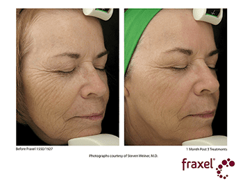 Fraxel Dual Before & After photo of woman