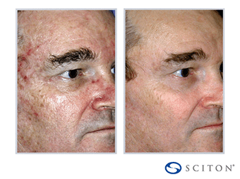 Sciton Contour TRL Before & After photo of man