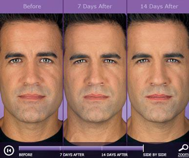 Botox - Hermosa Beach, CA: Pier Medical Aesthetics
