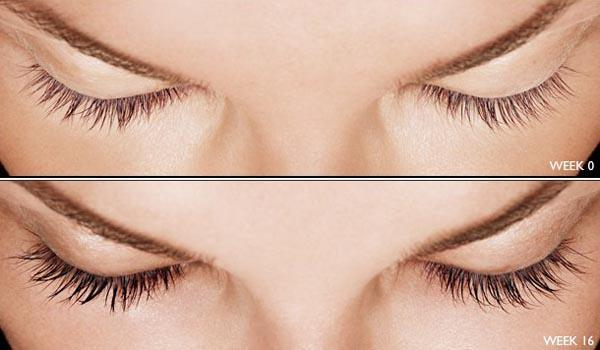 9e21780af77 Latisse Eyelash Growth - Hermosa Beach, CA: Pier Medical Aesthetics