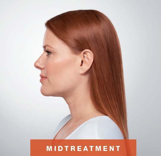 Mid Treatment