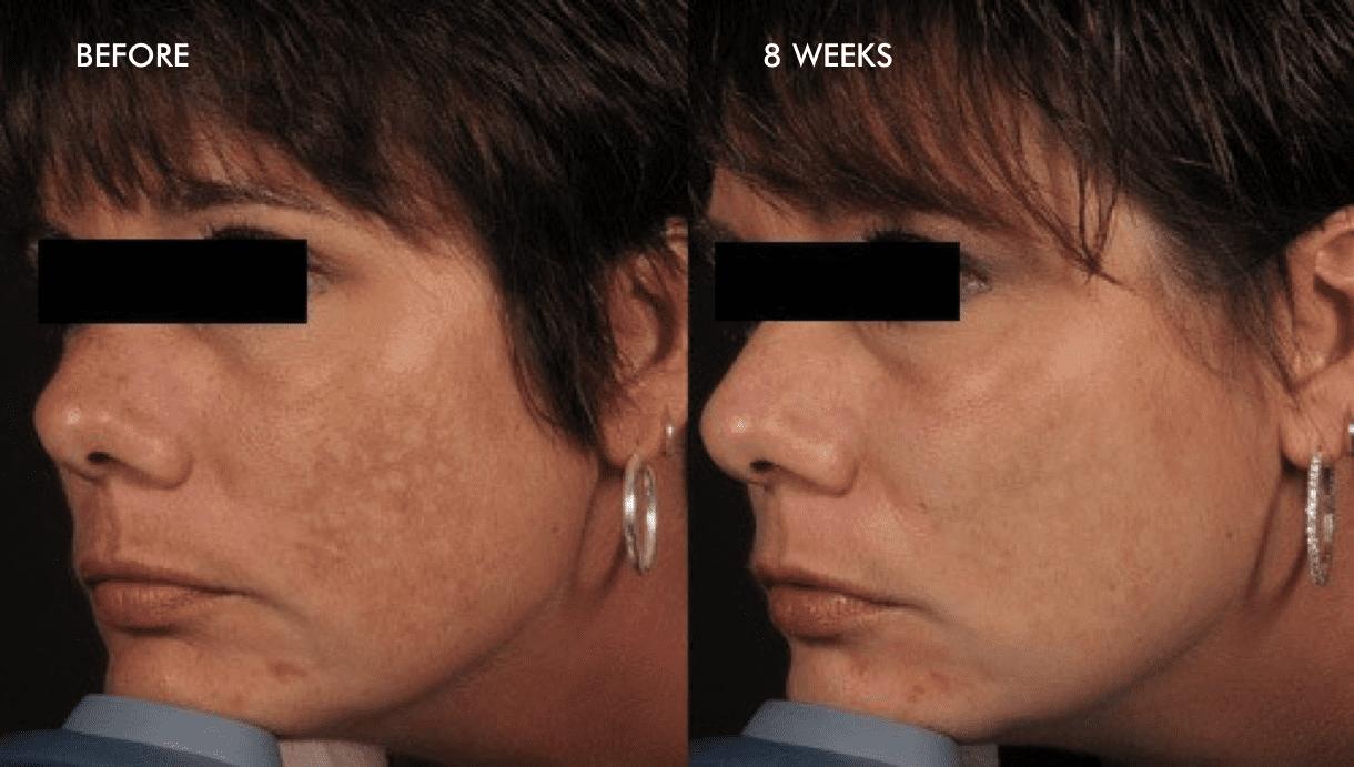 Pico Genesis To Treat Melasma And Pigments Specialist