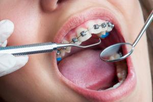 Dentist inspecting traditional braces before installing Invisalign
