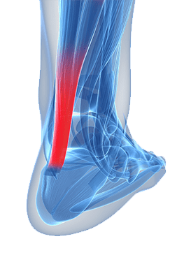 image of an ankle, achilles tendon X-ray view