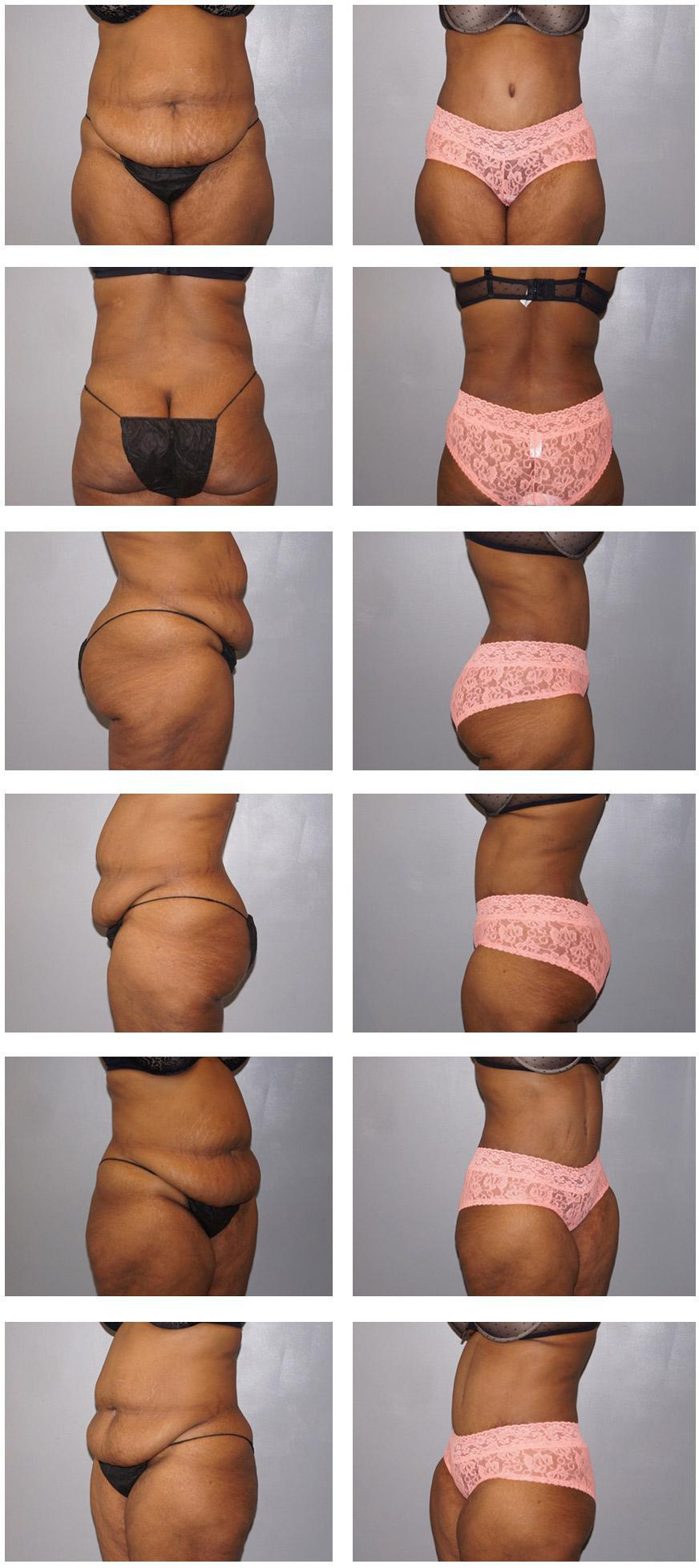 Tummy Tuck Before and After - Charlotte, NC: Providence Plastic Surgery