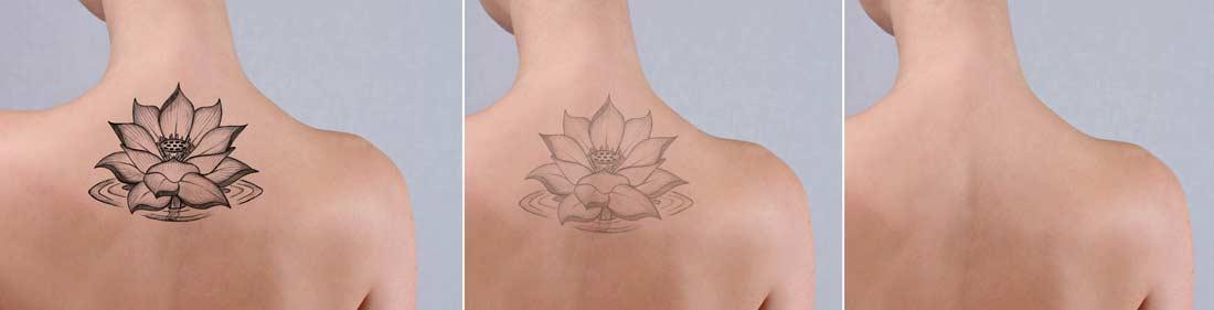 Laser Tattoo Removal - San Antonio, TX: KeyLife Med Spa