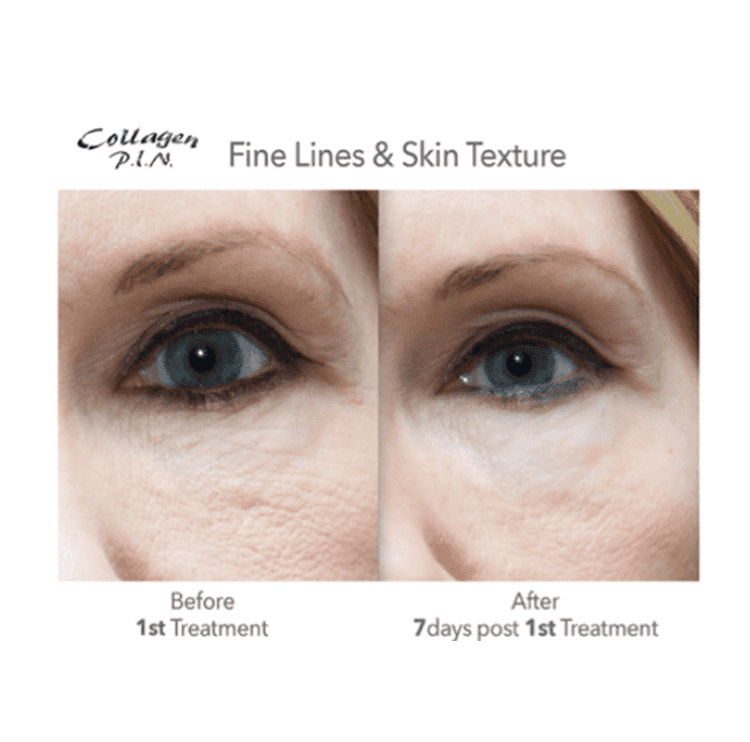 Microneedling Gallery - Haverhill, MA: Skin Serenity Medispa