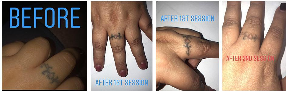 tattoo before and after image MDinjecter