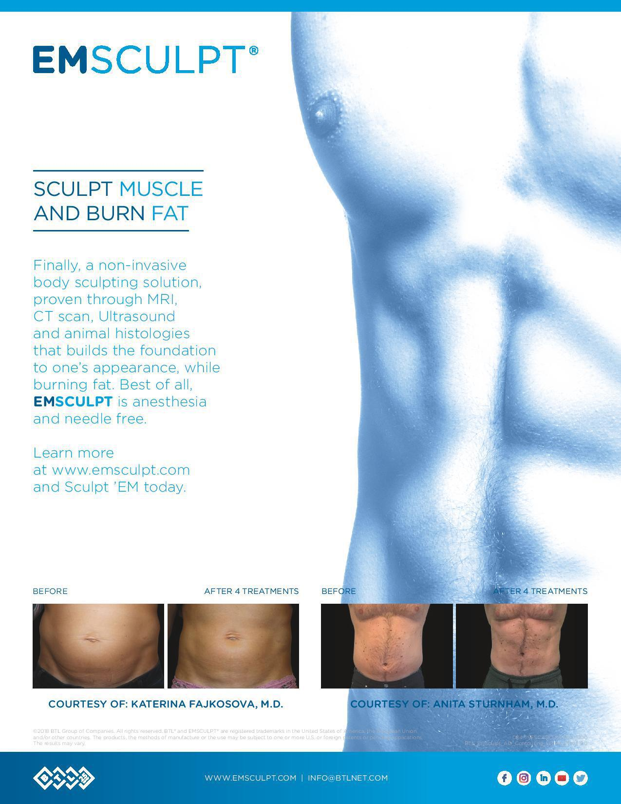 EMSCULPT Specialist - Great Neck, NY & Rego Park, NY: Stephanie Buck