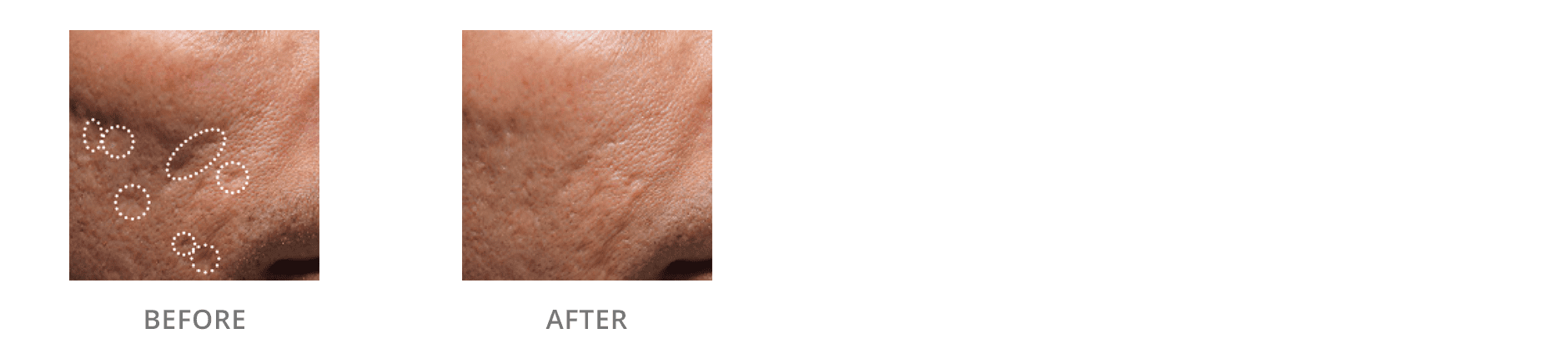 Acne Scarring Before And After Gallery Blaine Mn Associated Skin Care Specialists