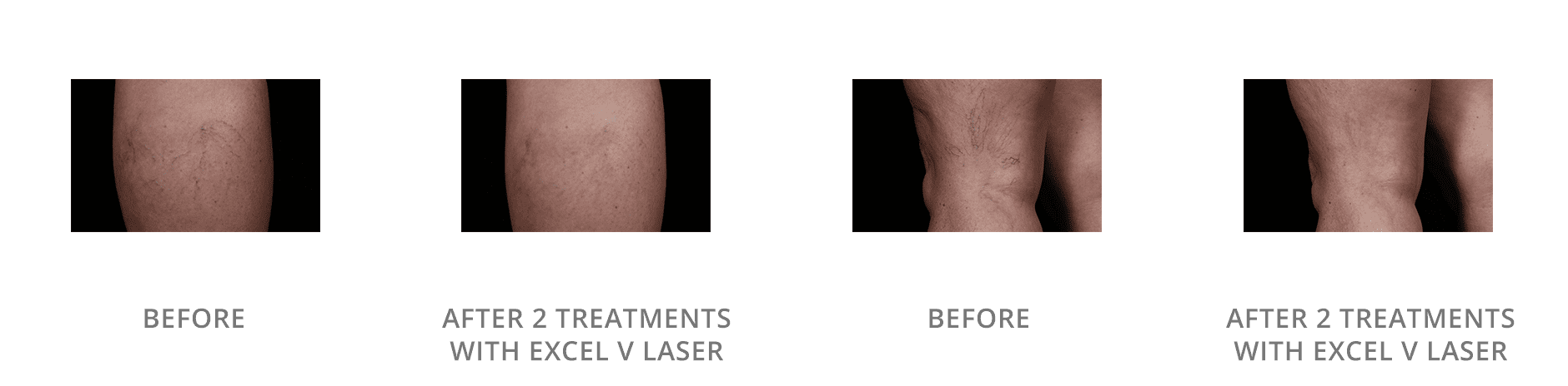 Spider Vein Treatment Before And After Gallery Blaine Mn Associated Skin Care Specialists