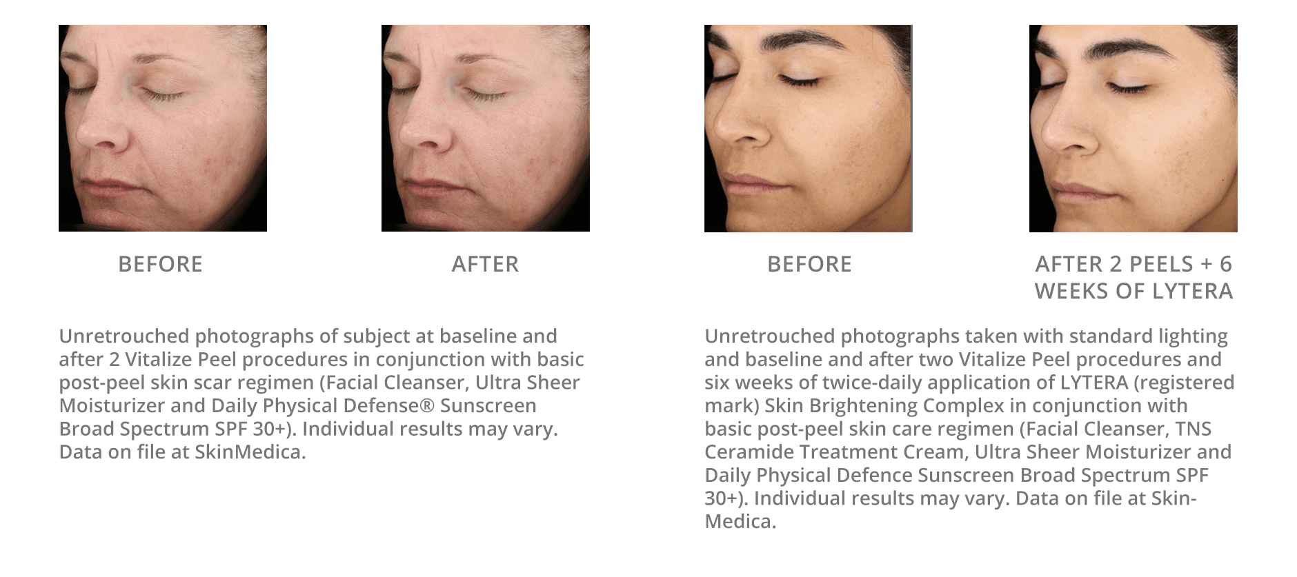 Chemical Peels Before And After Gallery Blaine Mn Associated Skin Care Specialists