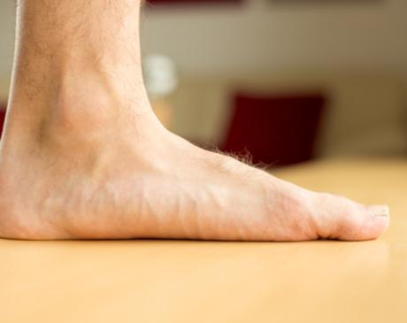 Flat Feet Specialist Chicago Schaumburg Elmhurst Lombard Il Highland In Center For Podiatric Medicine Podiatrist