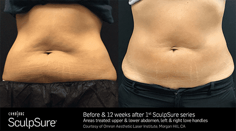 SculpSure Before and After