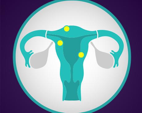Fibroid specialists nyc, Best fibroid surgeon nyc