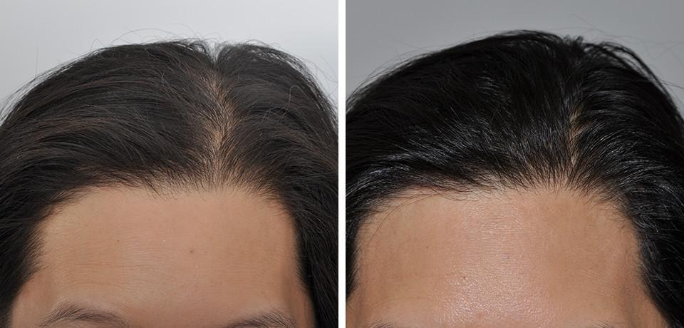 Hair Loss Specialist - Rutherford, NJ: Aanand Geria, MD