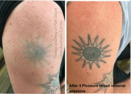 Laser Tattoo Removal Specialist - Park Slope Brooklyn, NY: Park ...
