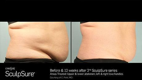 WarmSculpting Before and After