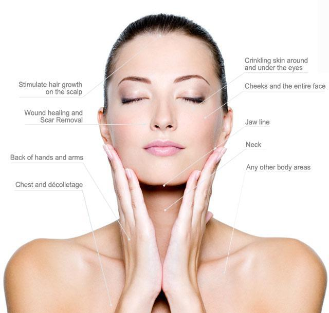 Micro-needling Information