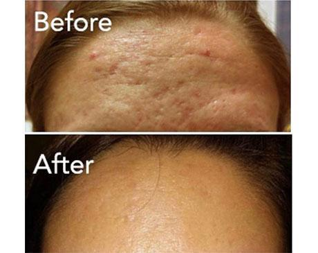 Vivace Before & After - Rochester Hills, MI: Rochester Laser