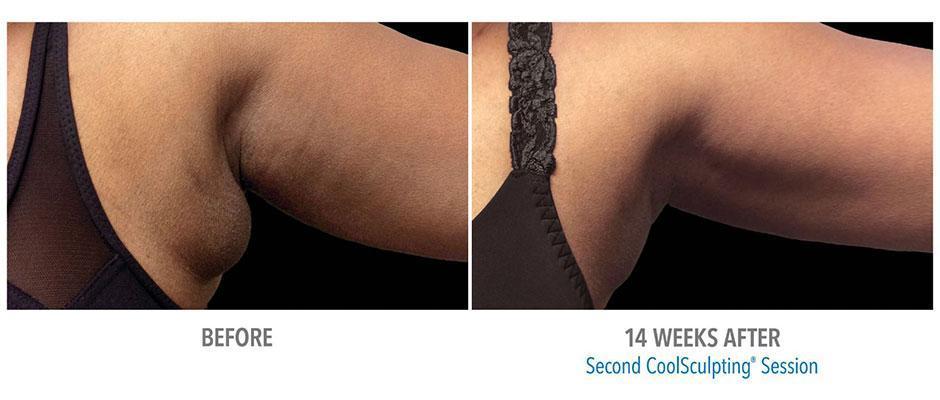 Bra Fat Before & After Gallery - Bakersfield, CA & Visalia, CA: Esla Oral &  Facial Surgery