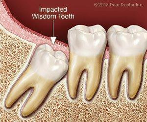 Wisdom Teeth Info