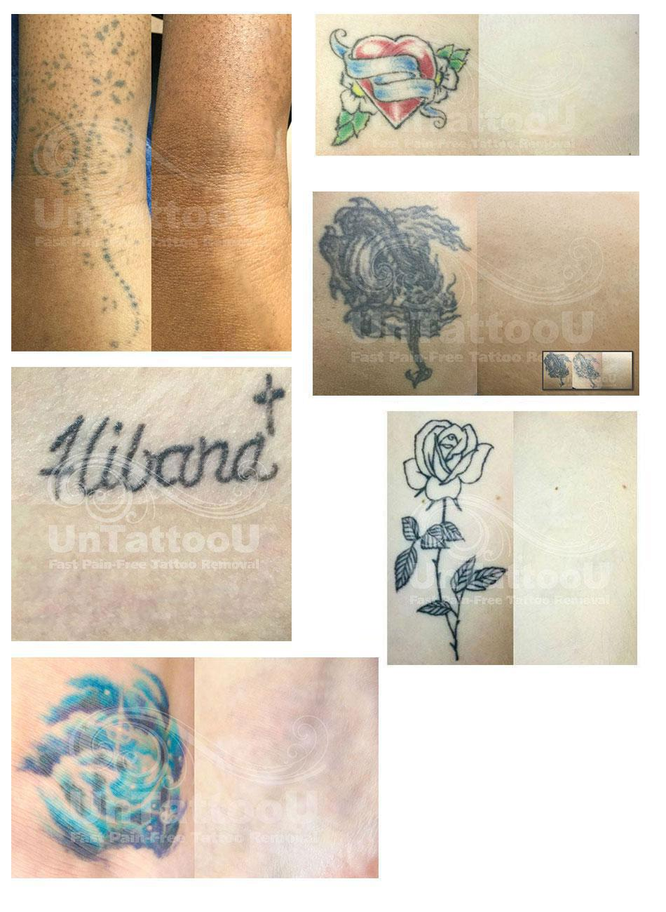 tattoo removals before and after