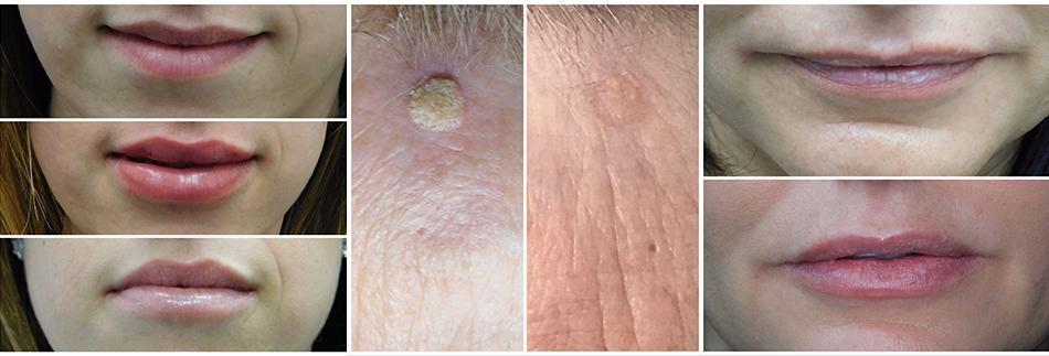 Before & After - Windham, NH: MD Esthetics
