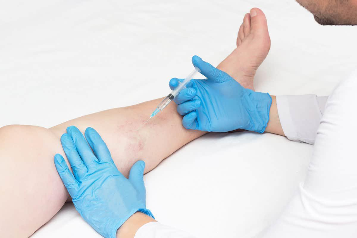 Sclerotherapy-Treatment-at-Progressive-Spine-Sports-Medicine-Ramsey-NJ