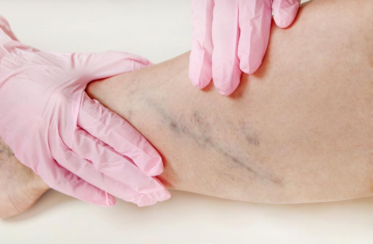 Vein Treatments for Vascular Issues Ramsey NJ