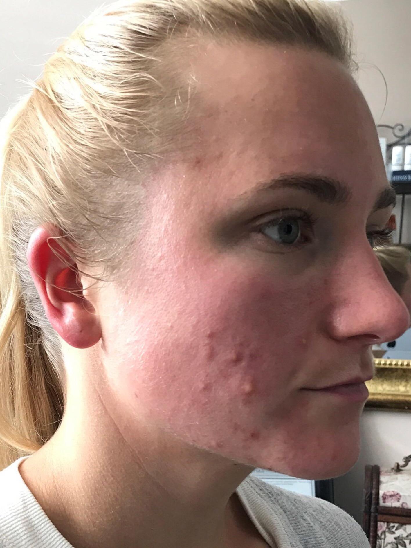 Acne Treatment Specialist - Davis, CA: Nouvelle Medical