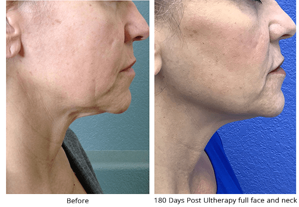 before and after ultherapy full face results