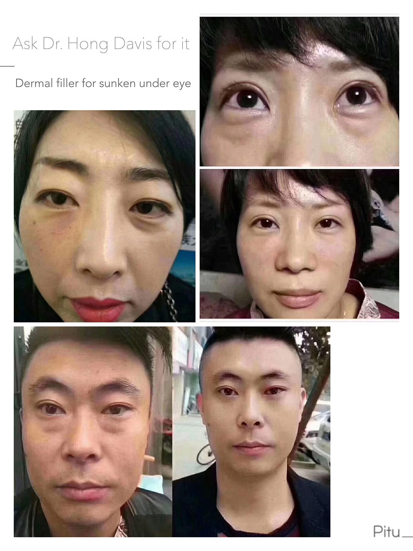 dermal filler for sunken under eye and middle face before and after