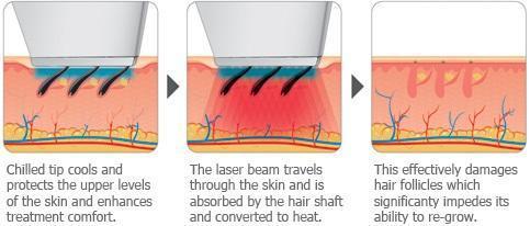 laserhair