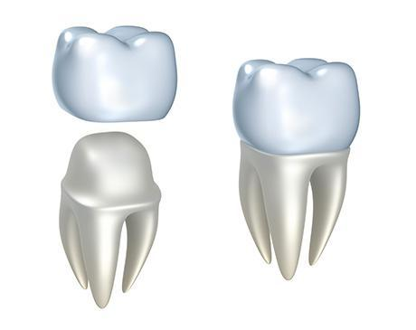 e9fa5a50507 These are restorations to repair a severely broken tooth by covering all or  most of the tooth after removing old fillings